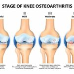 4 stages of Knee Osteoarthritis